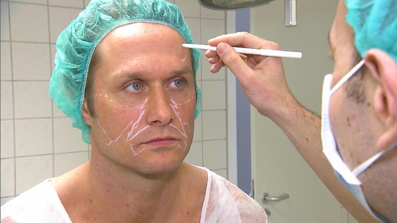 Nico Schwanz beim Beauty-Doc: Bauchfett fürs Gesicht